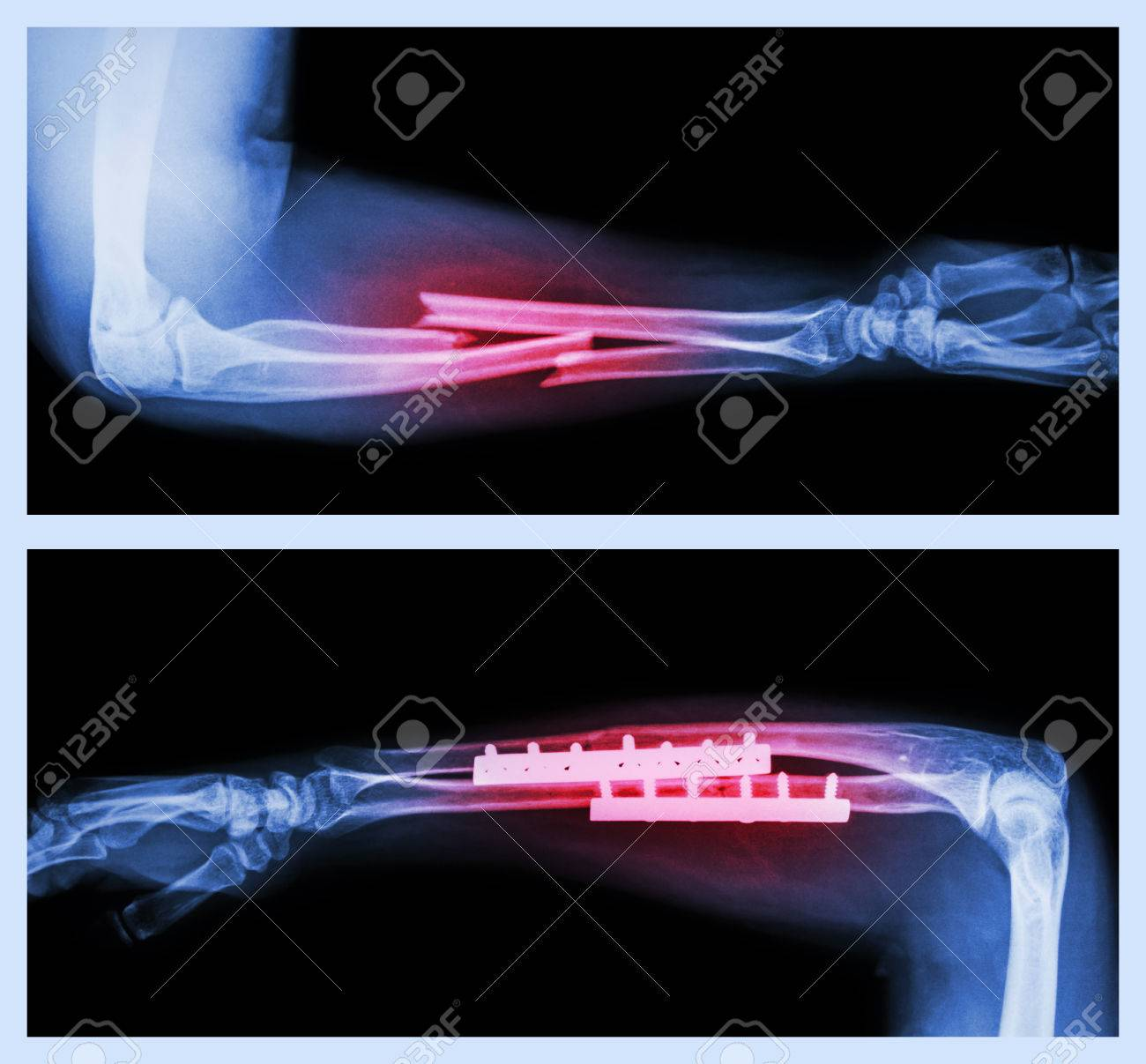 Upper Image Fracture Ulnar And Radius Forearm Bone Lower