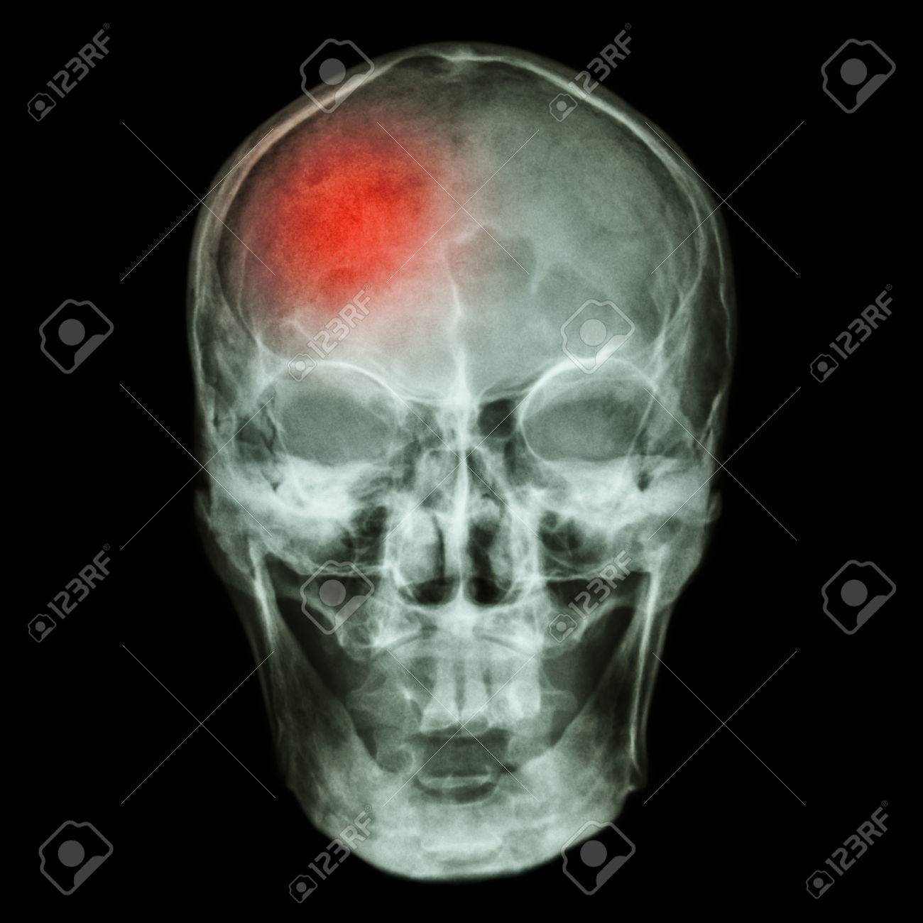 stroke cerebrovascular accident stock photo 32505834
