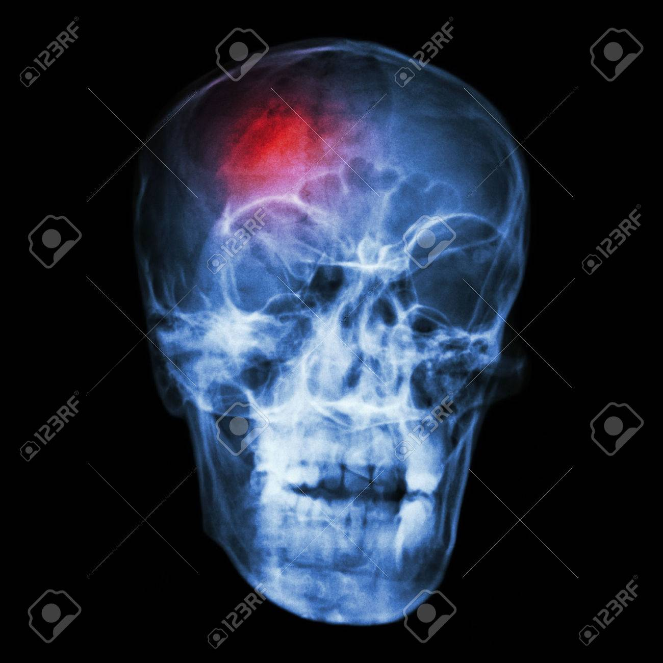 stroke cerebrovascular accident x ray side of asian skull stock photo 32505941