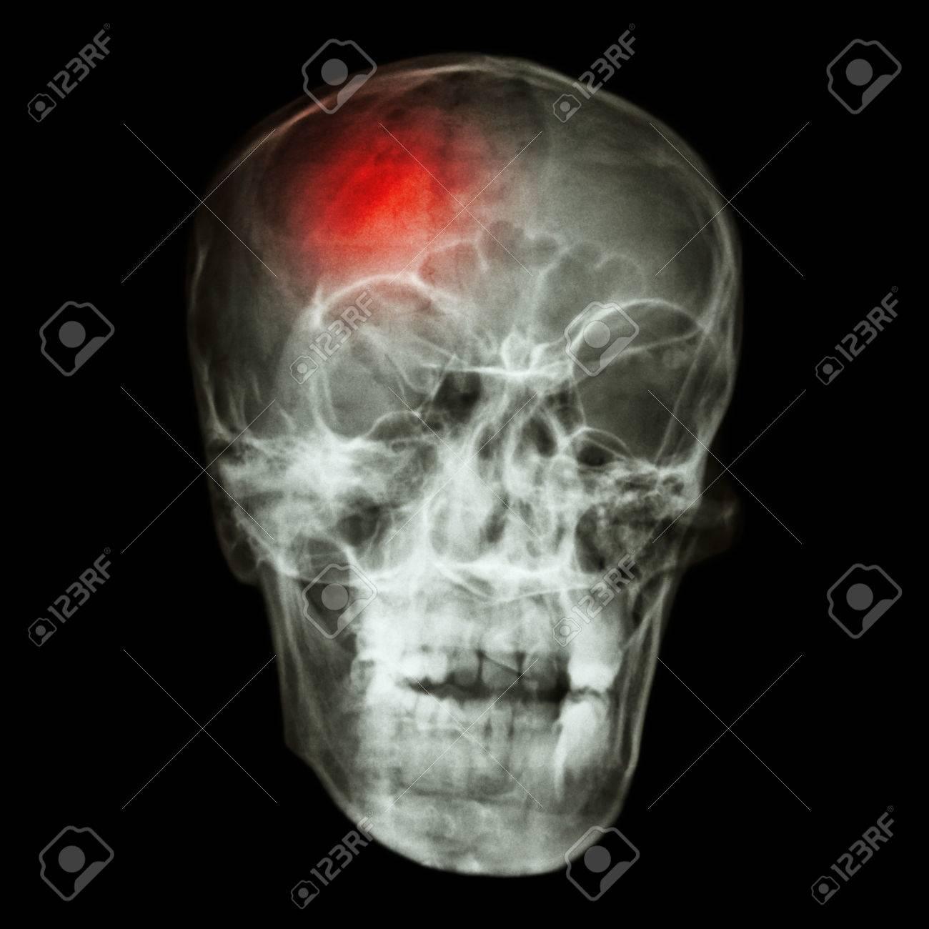 stroke cerebrovascular accident x ray side of asian skull stock