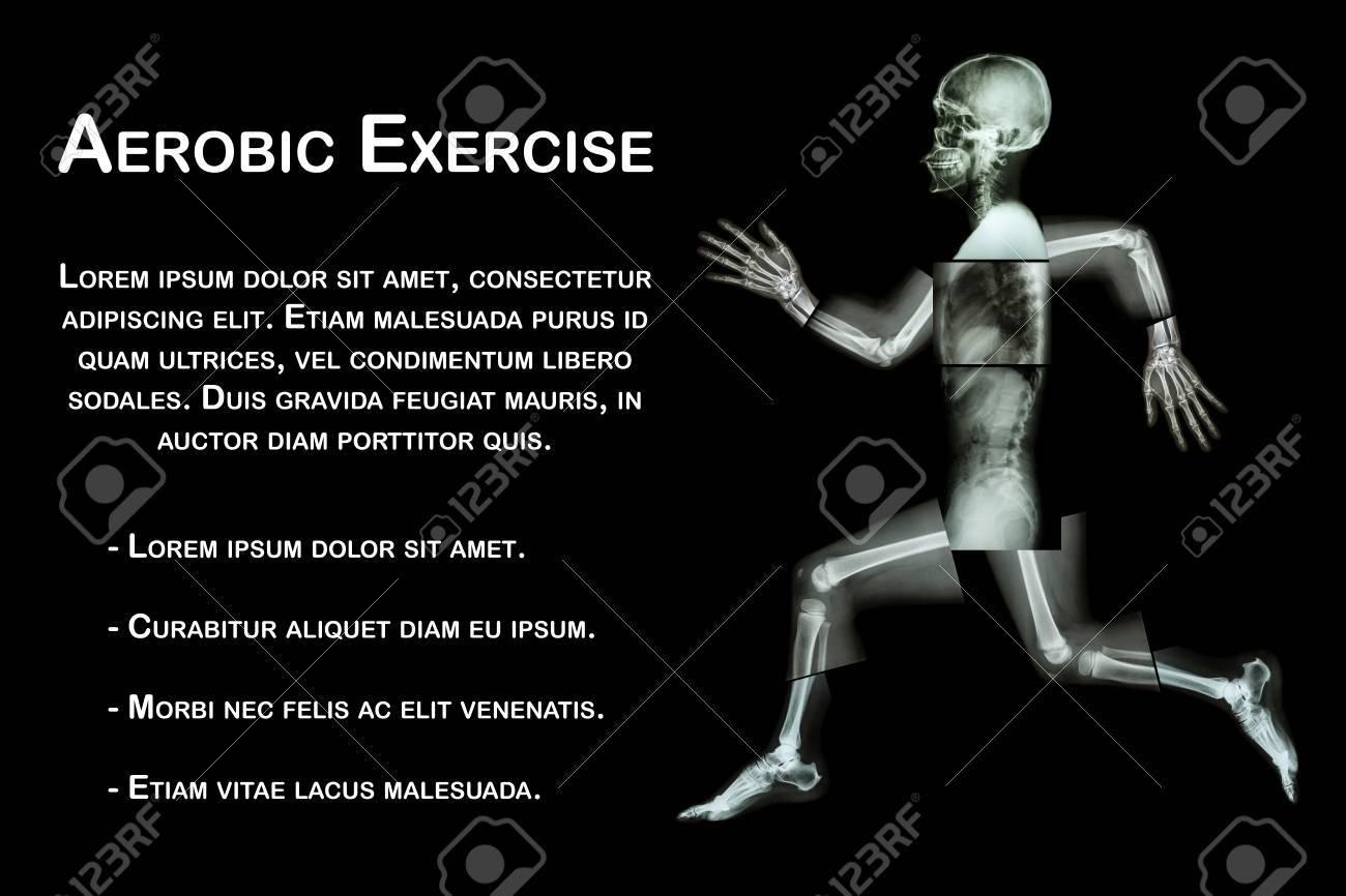 Aerobic-Übung (menschlichen Knochen Läuft), (Ganzkörper-Röntgen ...