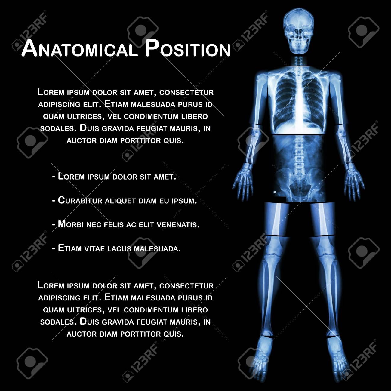 Anatomischen Position. (X-ray Ganzen Körper: Kopf, Hals, Thorax ...