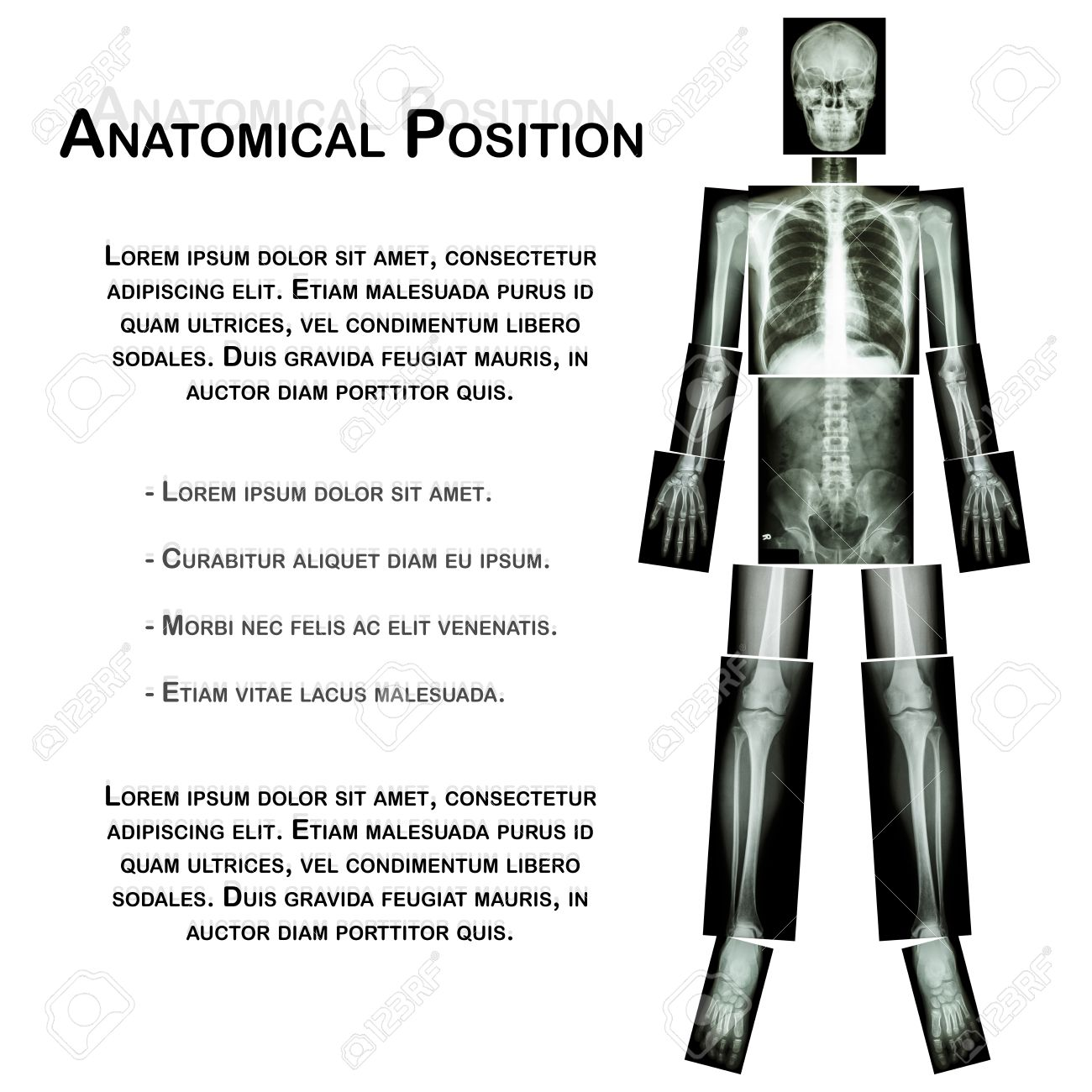 Posición Anatómica. (Rayos X De Todo El Cuerpo: Cabeza, Cuello ...