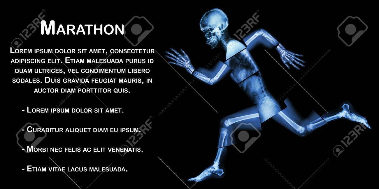 Marathon (menschlichen Knochen Läuft), (Ganzkörper-x-ray: Kopf, Hals ...