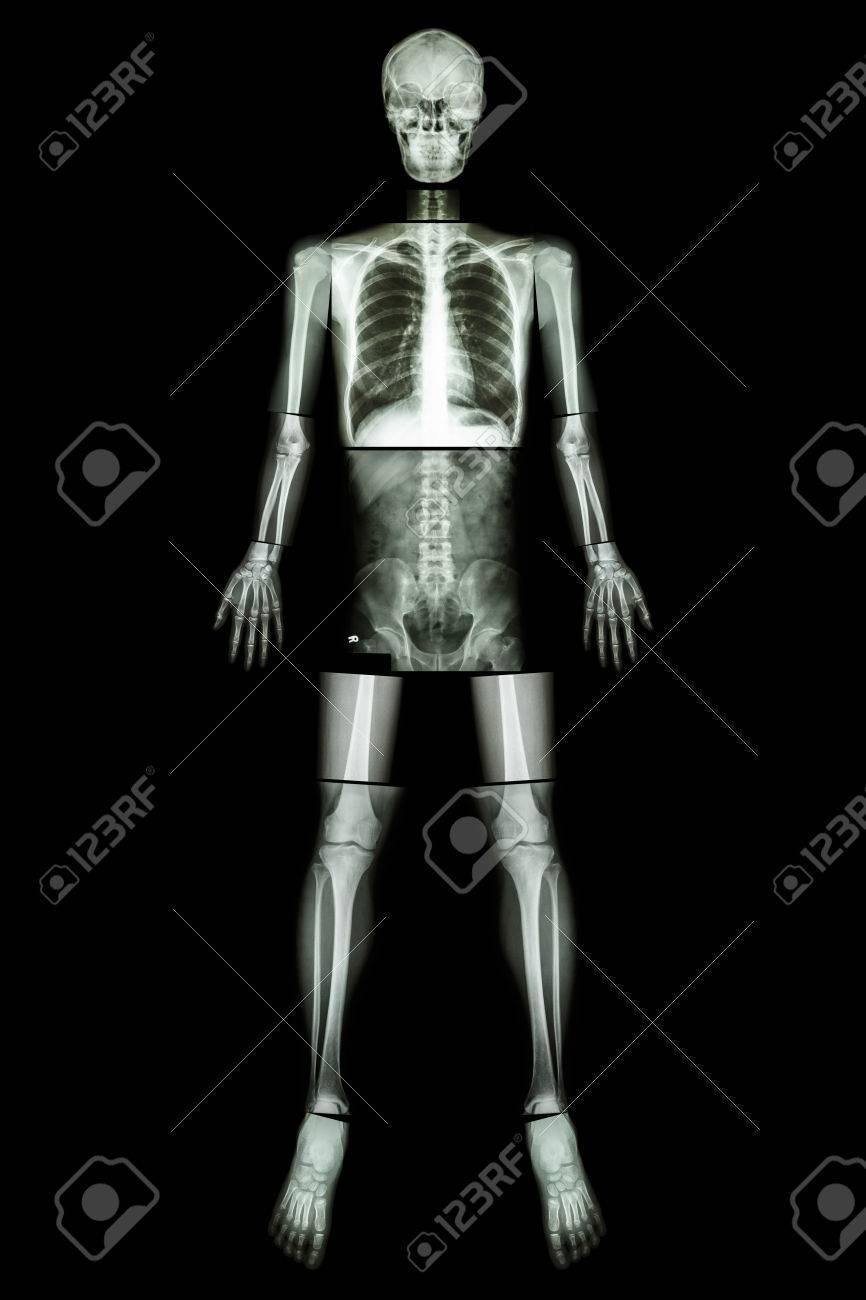 Anatomische Position (Röntgen Ganzen Körper: Kopf, Hals, Thorax ...