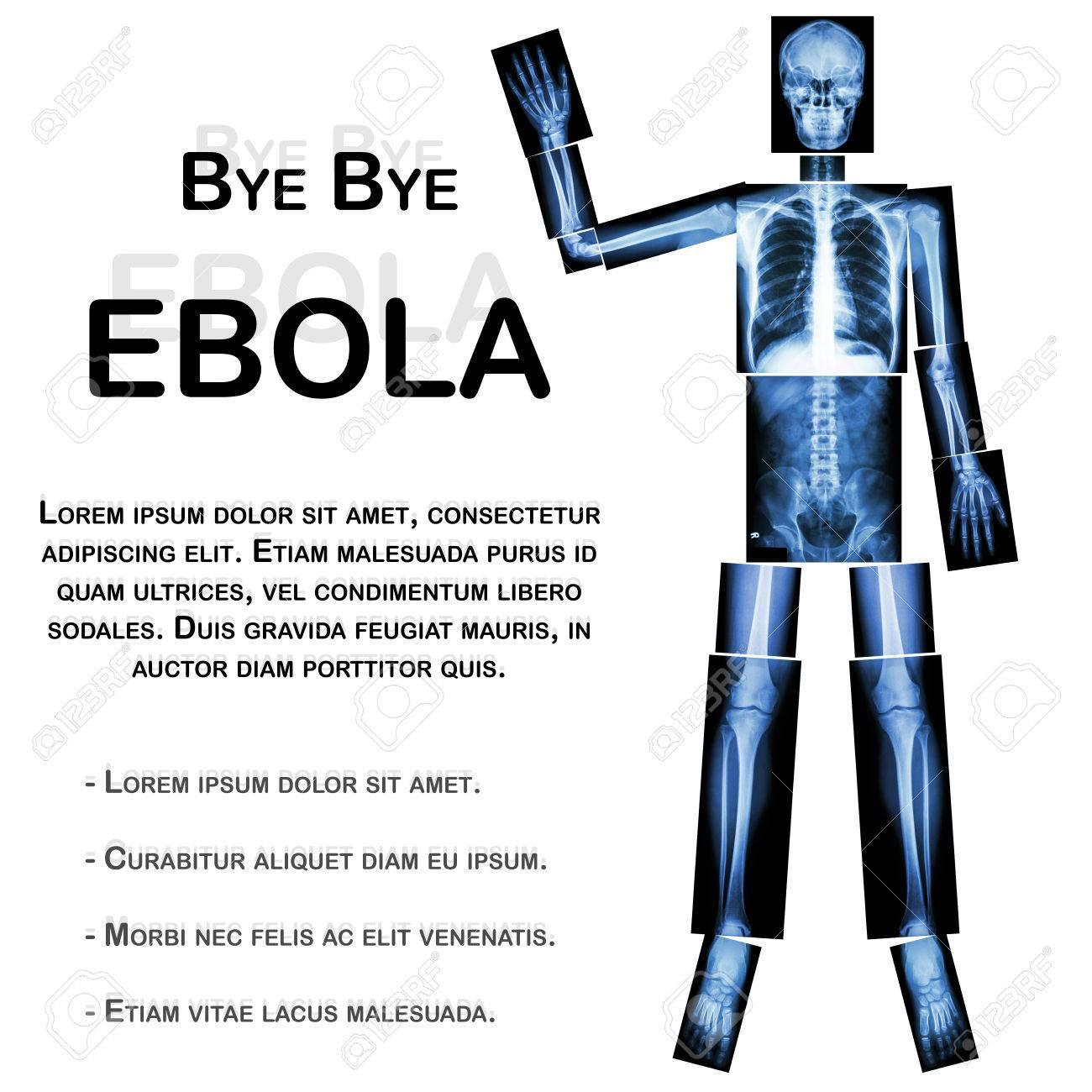 Auf Wiedersehen EBOLA. (Mensch Knochen Welle Der Hand) (Ganzkörper ...