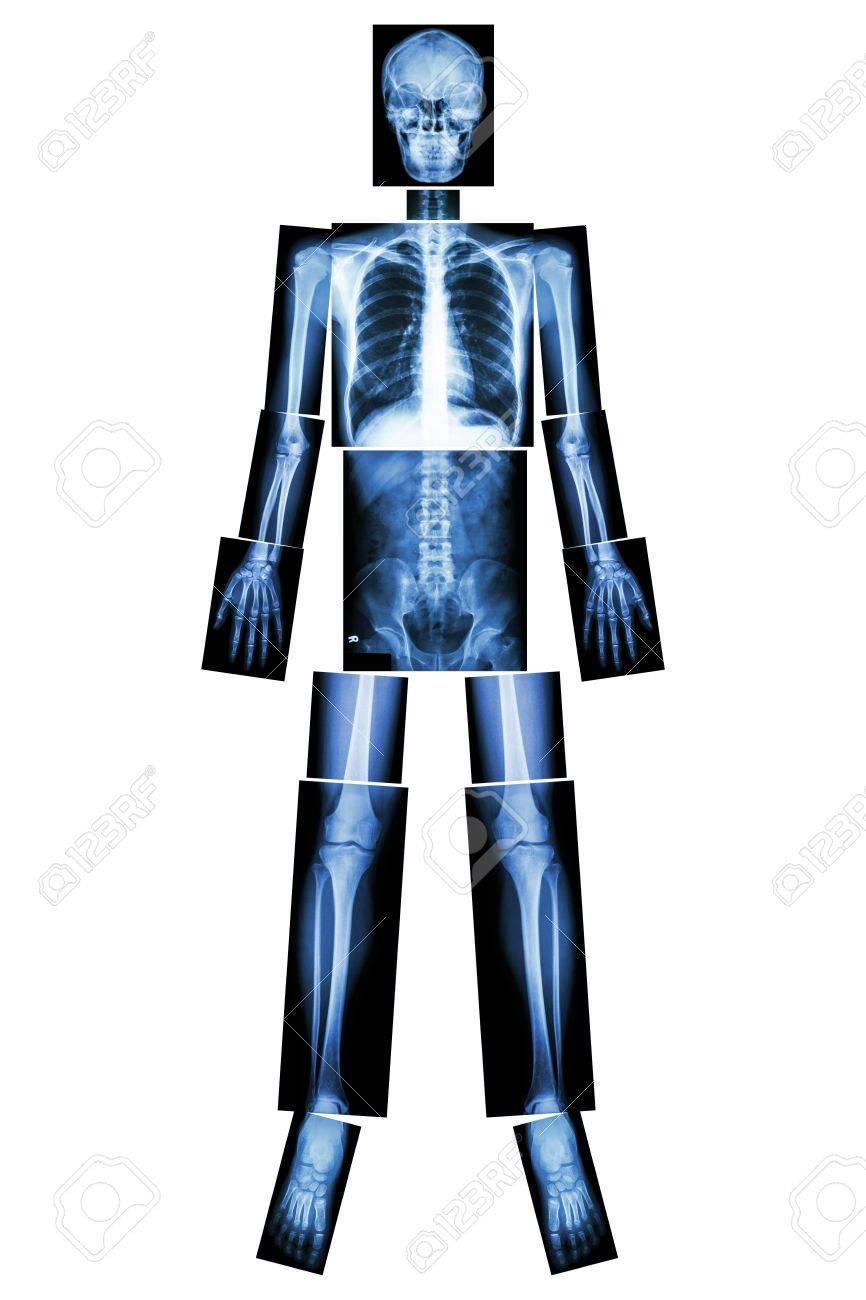 Posición Anatómica (rayos X Todo El Cuerpo: La Cabeza, El Cuello, El ...