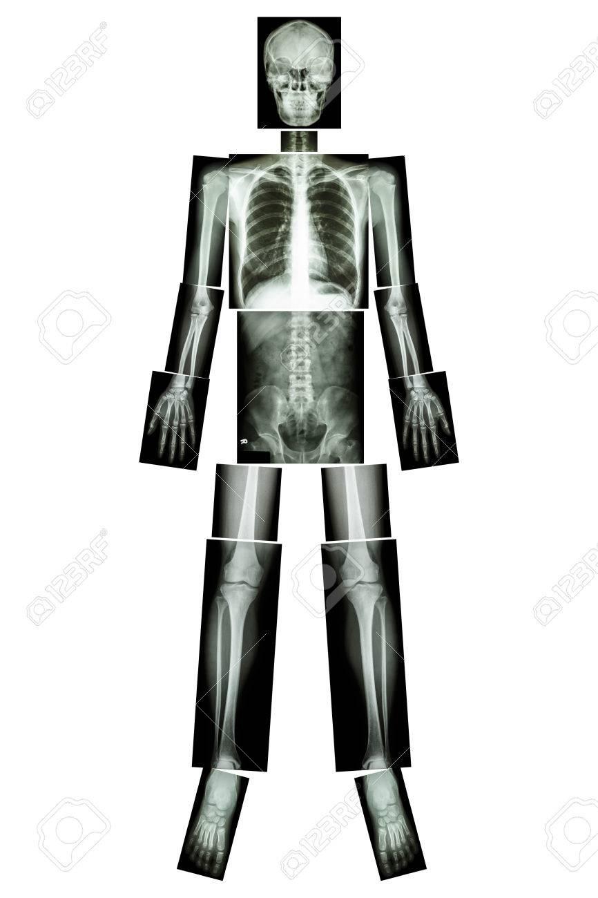 Fantastisch Kopf Und Hals Radiologie Anatomie Bilder - Anatomie Von ...