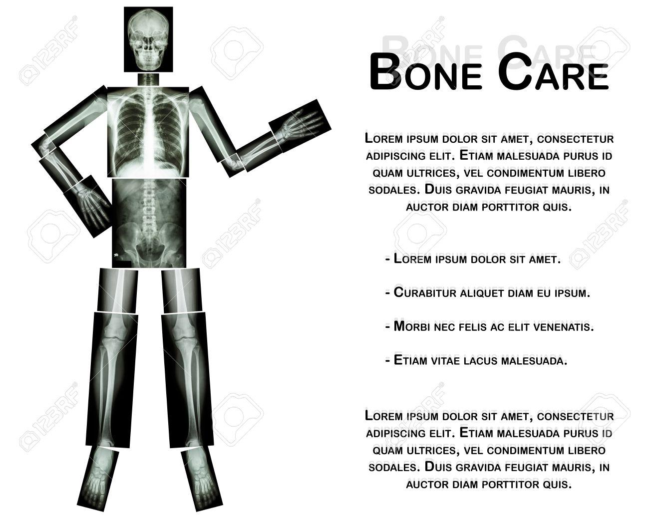 Menschliches Skelett Vorhanden Etwas (Ganzkörper: Kopf Schädel ...