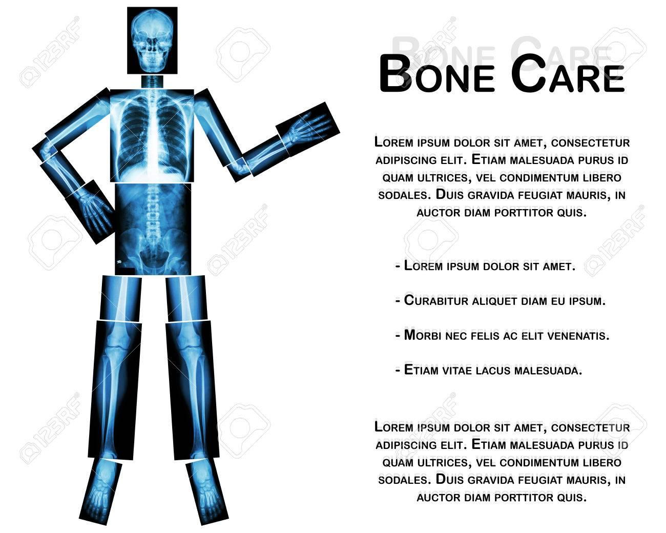 Esqueleto Humano Algo Presente (de Todo El Cuerpo: Cabeza Cuello ...