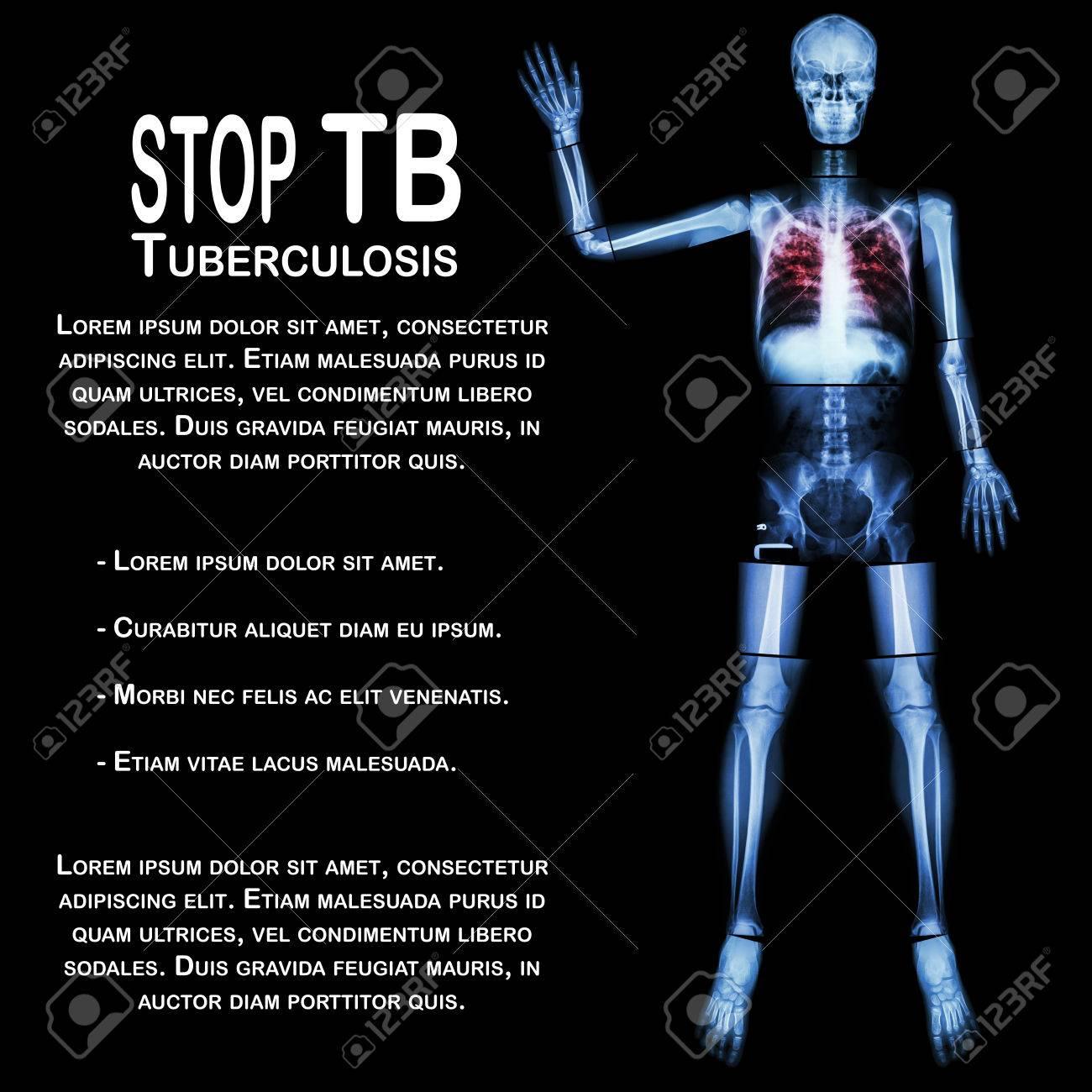 Stop TB (Tuberkulose) (Human Knochen Raise Hand) (Ganzkörper: Kopf ...
