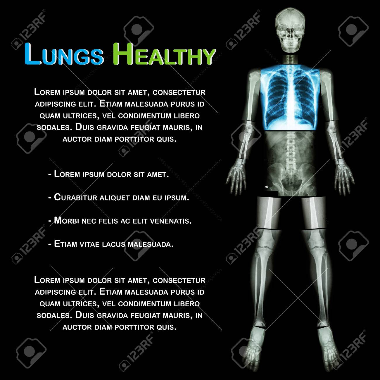 Lung Gesunden (X-ray Ganzkörper: Schädelkopf Halswirbelsäule ...