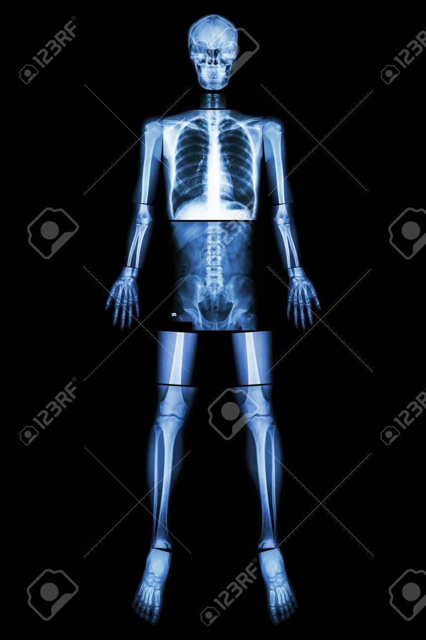 Posición Anatómica (de Rayos X De Todo El Cuerpo: La Cabeza, El ...