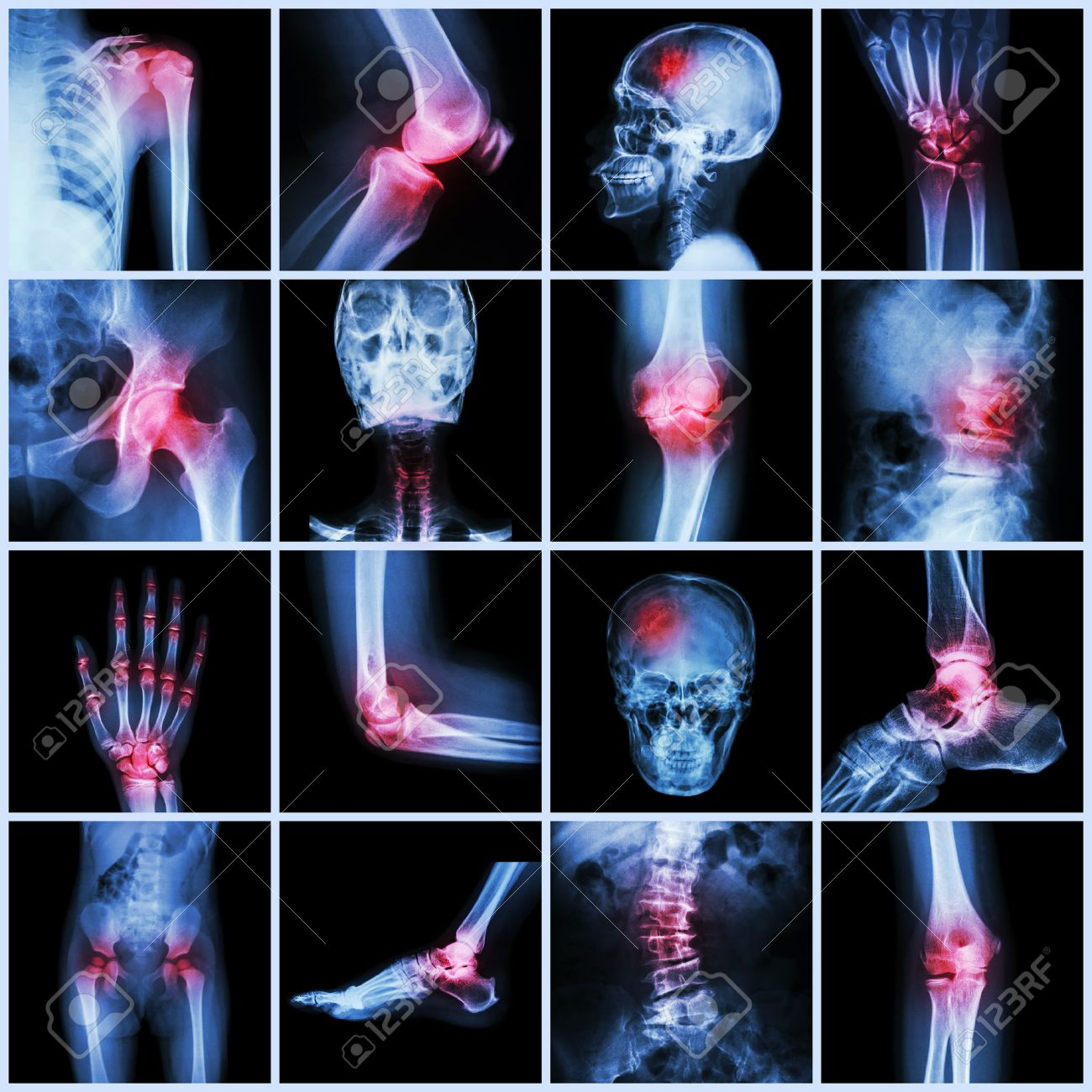 Collection Human Joint And Arthritis And Stroke ( Skull Head.. Stock ...