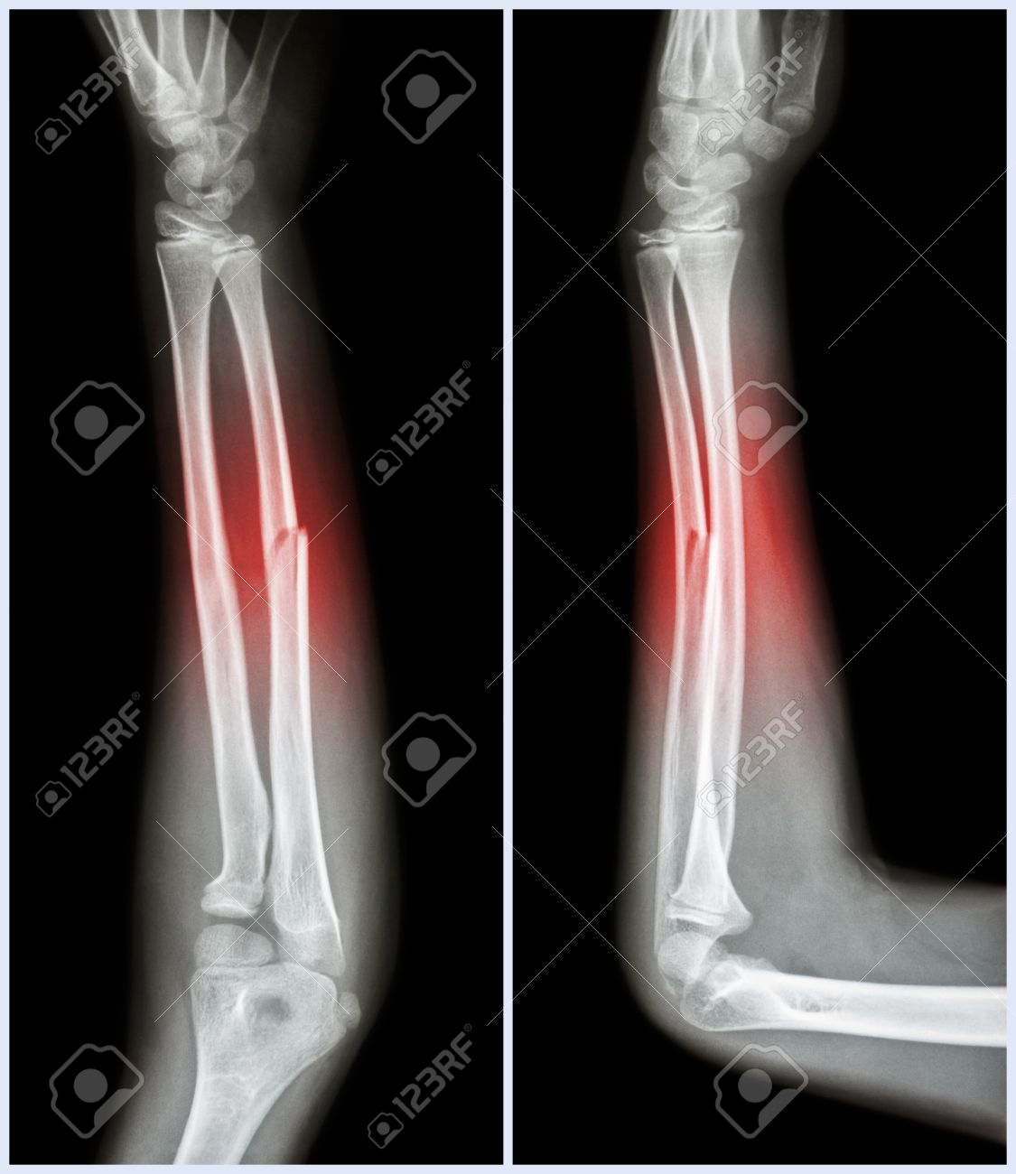 Fracture Shaft Of Ulnar Bone Forearm Bone Front And Stock