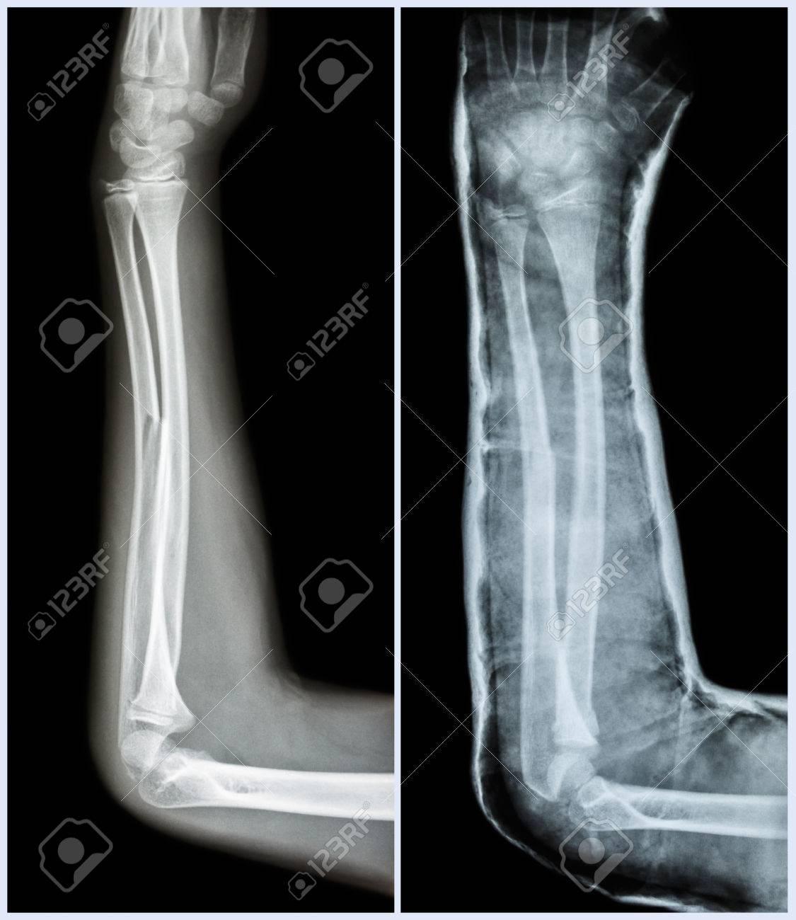 Eje De La Fractura De Cúbito ósea (hueso Del Antebrazo): (Izquierda ...