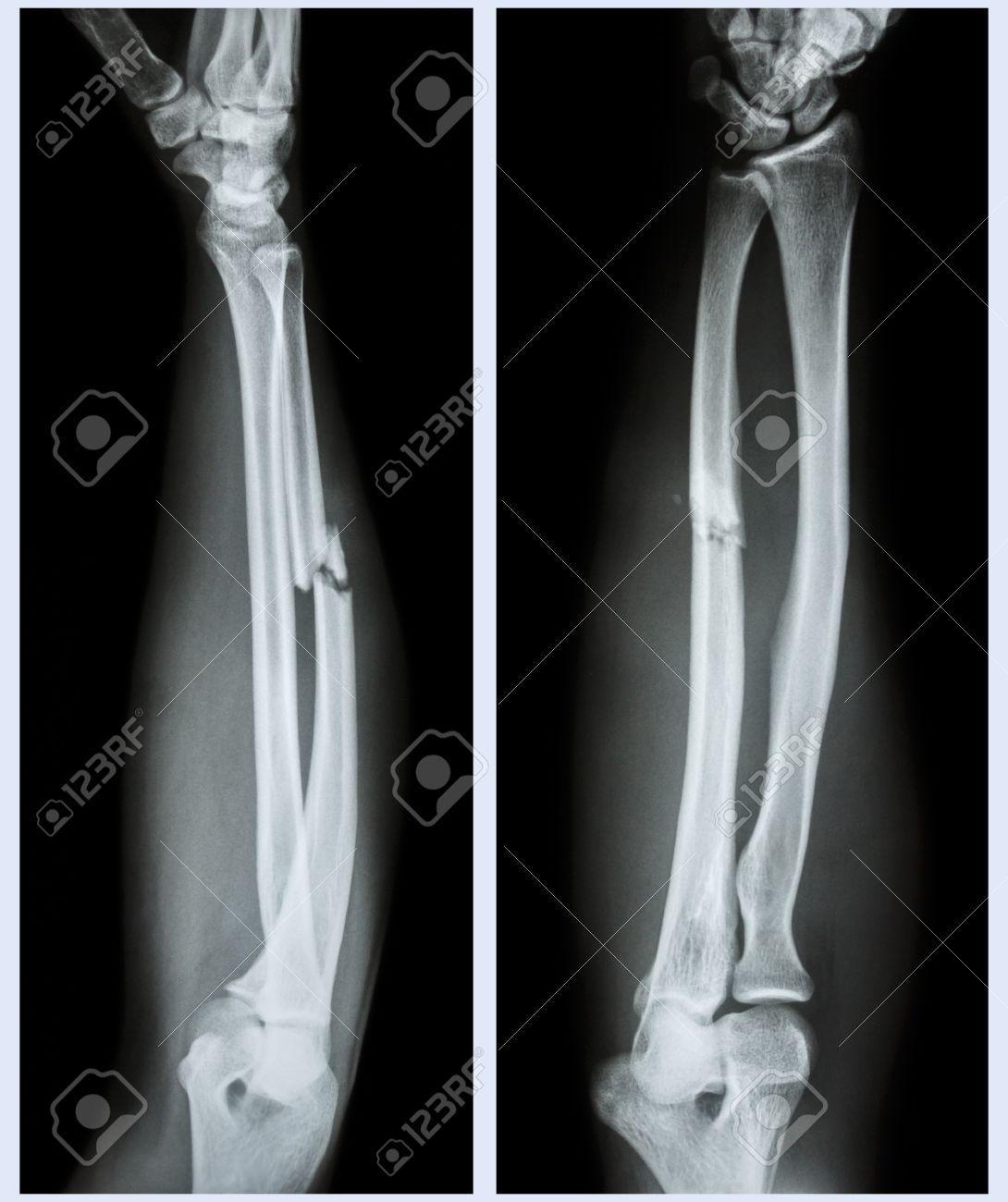 Röntgen Unterarm (Front, Seite): Trümmerfraktur Welle Ulna Knochen ...