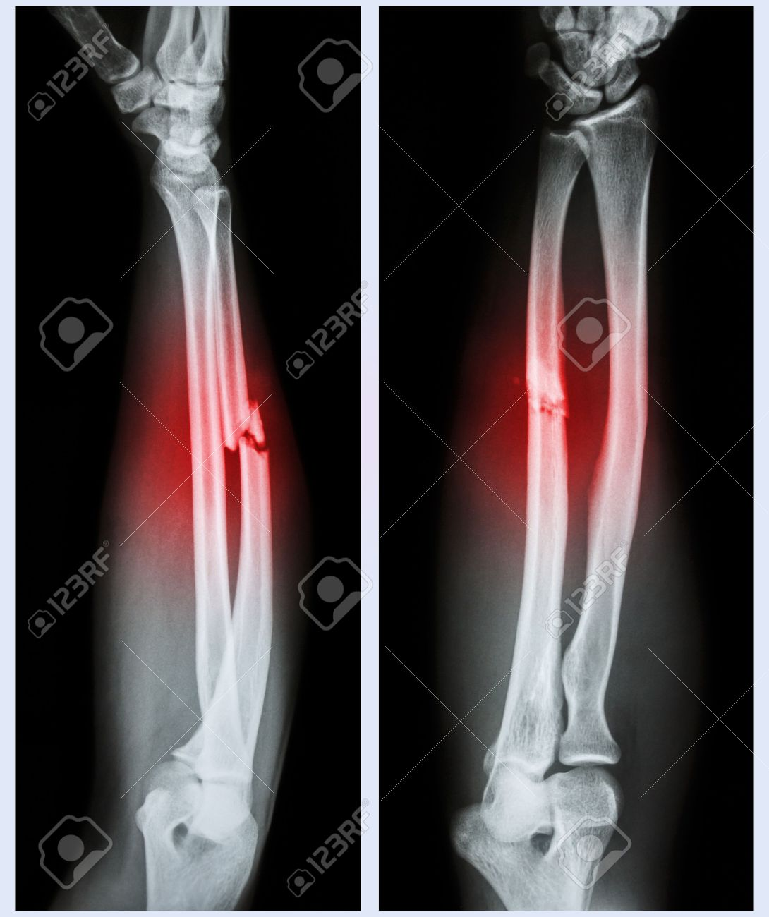 X Ray Forearm Front Side Comminuted Fracture Shaft Of