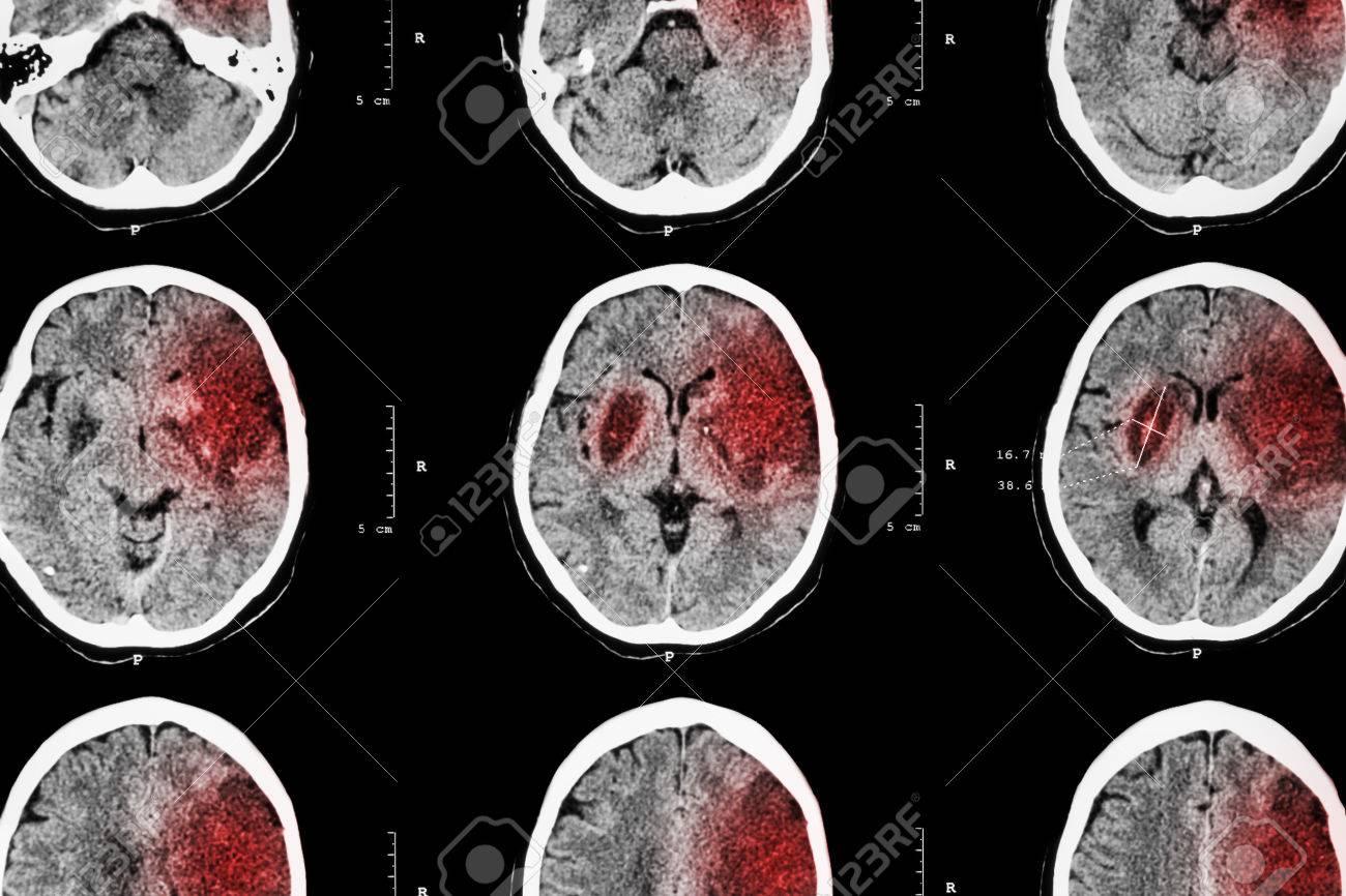 Der Ischämische Schlaganfall (CT Des Gehirns Zeigen Hirninfarkt ...