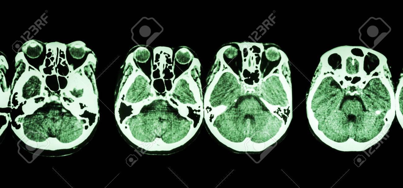 CT-Scan Des Gehirns Und Der Schädelbasis (show Struktur Des Auges ...