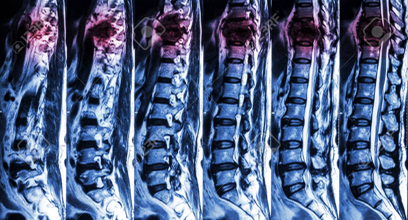 MRI Of Lumbar & Thoracic Spine : Show Fracture Of Thoracic Spine ...