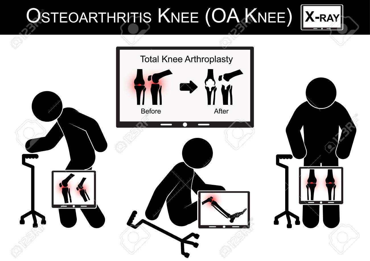 Old man pain at his knee , Monitor show image of Total knee arthroplasty ( before and after surgical treatment ) Osteoarthritis knee vector ( flat design ) ( Health care concept ) - 40882464