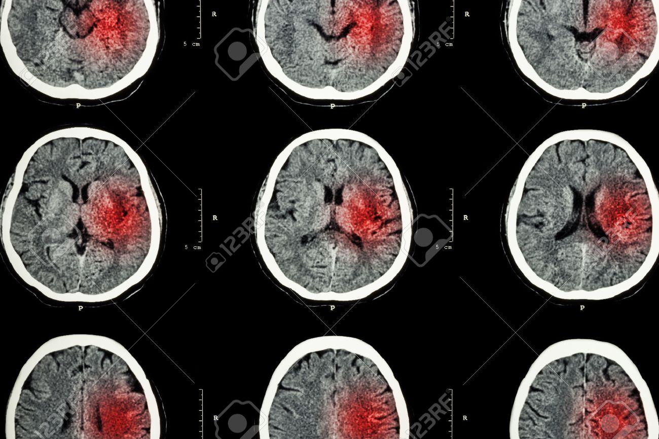 CT-Scan Des Gehirns Mit Roten Bereich (Imaging Für Hämorrhagischen ...