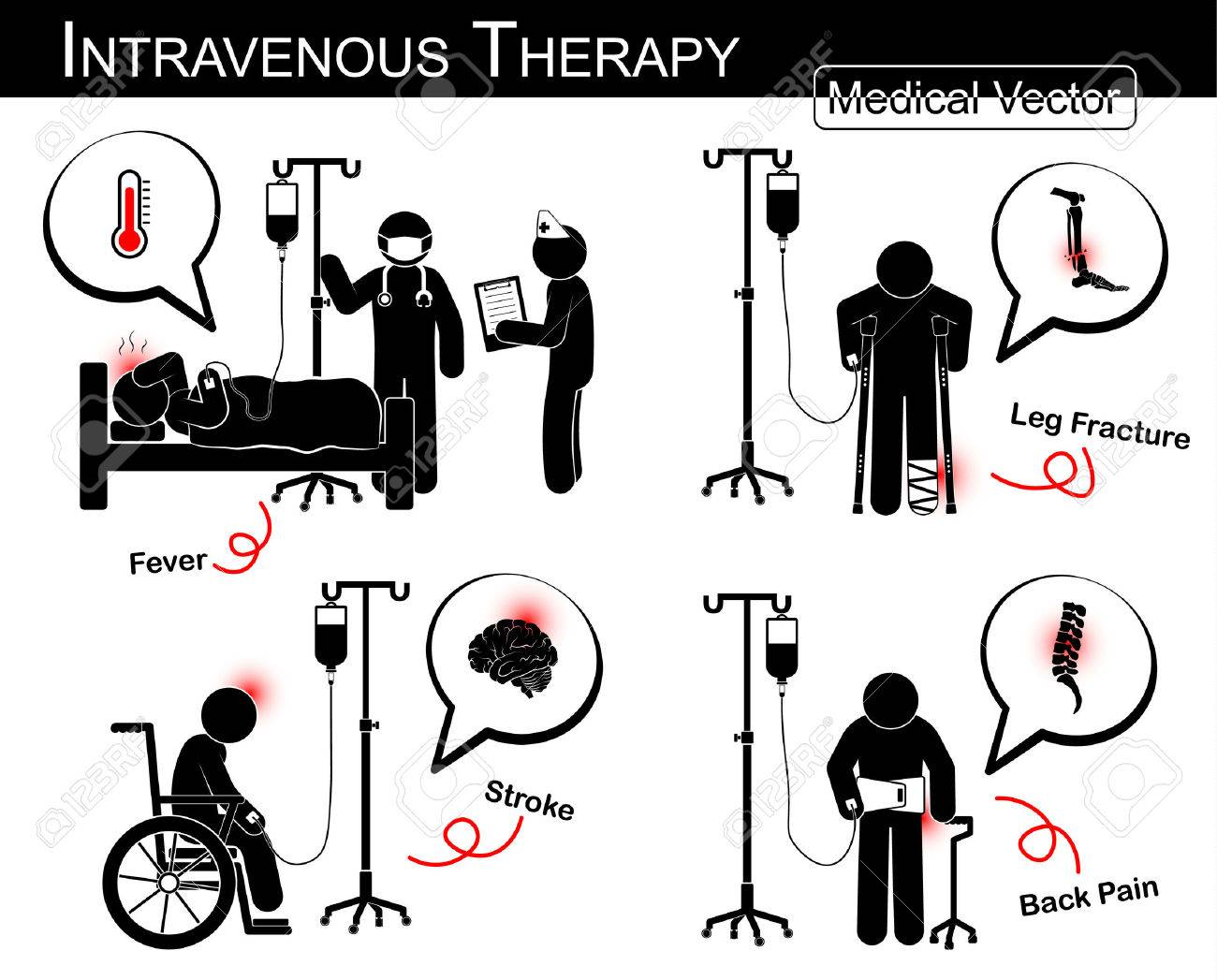 Set of vector stick man : patient with multiple disease with intravenous fluid ( flat design , Black white style )( Medical and Science concept )( Fever , Leg fracture , Stroke attack , Low back pain) - 42537791