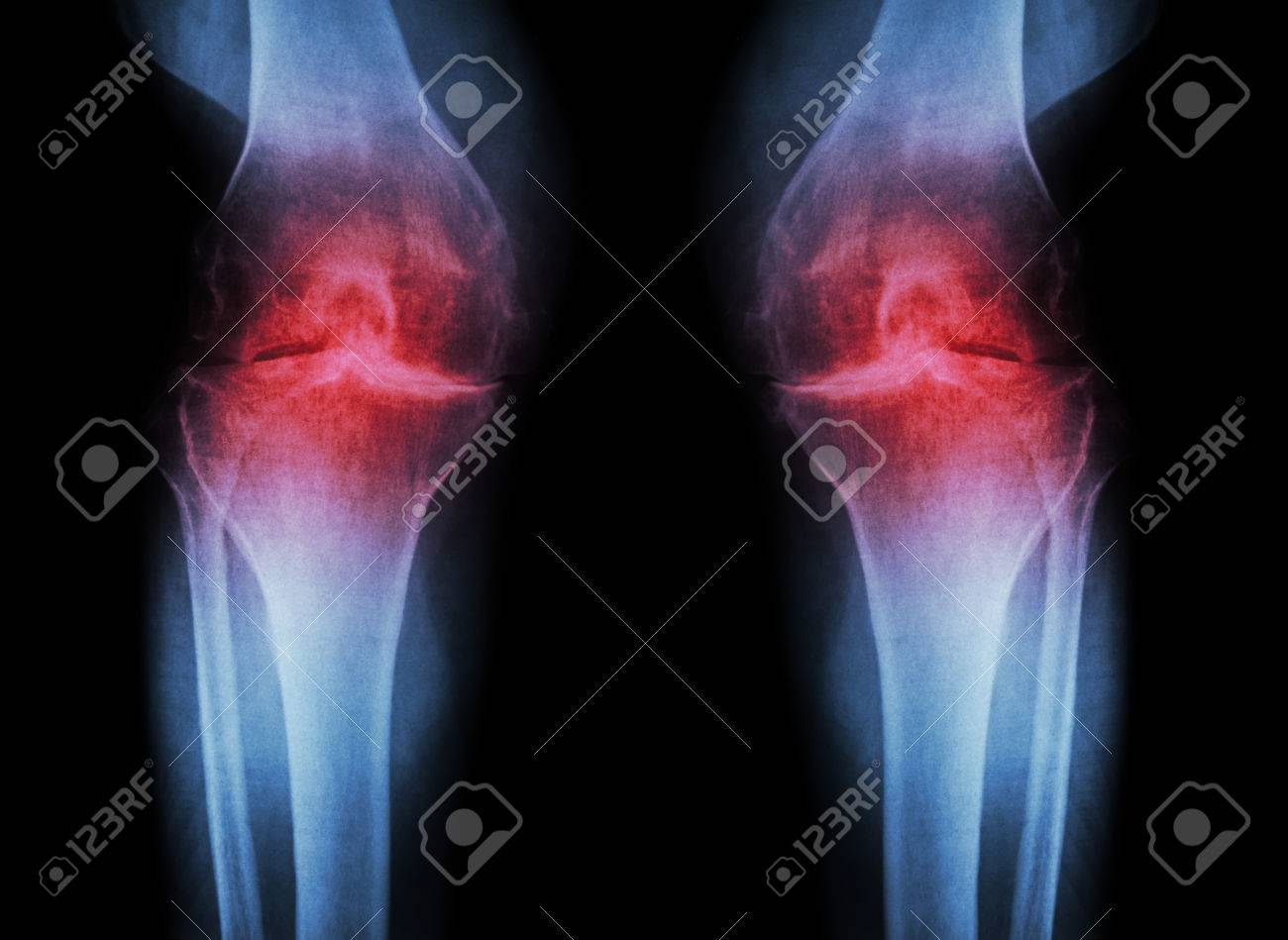 Osteoarthritis Knee ( OA Knee ) ( Film x-ray both knee with arthritis of knee joint : narrow knee joint space ) ( Medical and Science background ) - 43834372