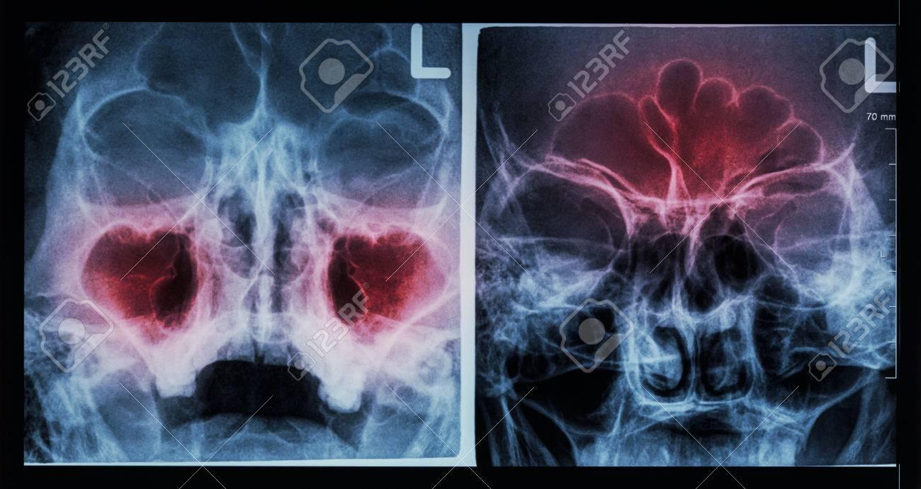 Film X-ray paranasal sinus : show sinusitis at maxillary sinus ( left image ) , frontal sinus ( right image ) - 44390994