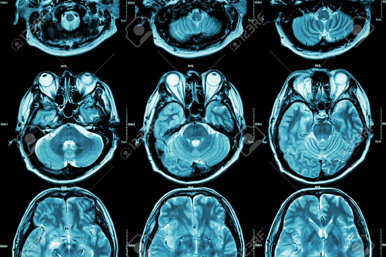 MRI of Brain ( cross section of brain ) ( Medical , Health care , Science background ) - 44585309