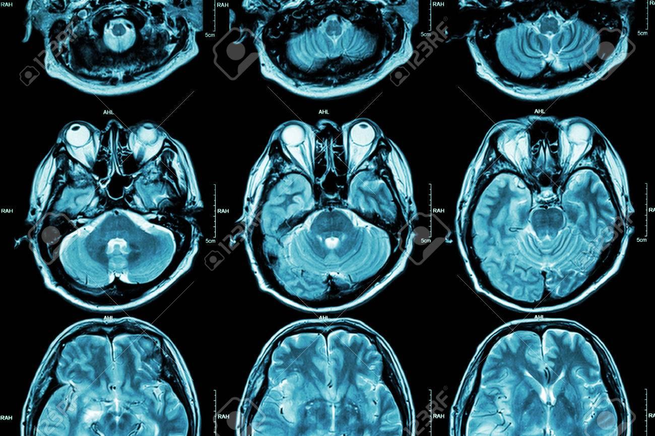 MRI Of Brain ( Cross Section Of Brain ) ( Medical , Health Care ...
