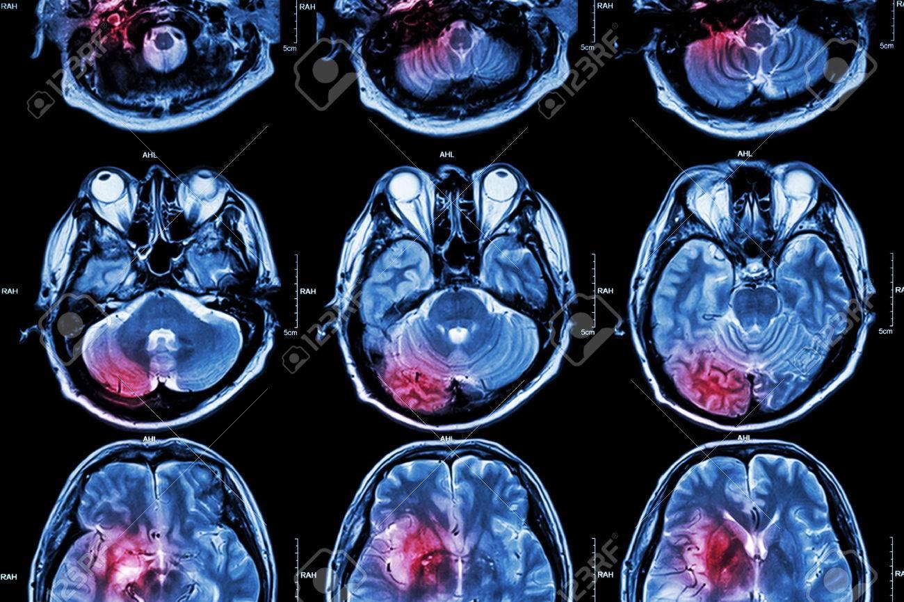 Film MRI ( Magnetic resonance imaging ) of brain ( stroke , brain tumor , cerebral infarction , intracerebral hemorrhage ) ( Medical , Health care , Science Background ) ( Cross section of brain ) - 44846103