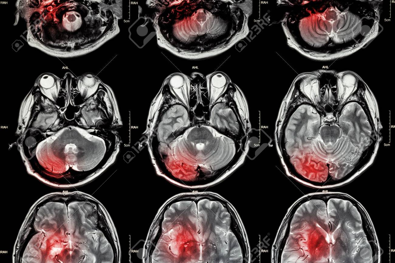 Film MRI ( Magnetic resonance imaging ) of brain ( stroke , brain tumor , cerebral infarction , intracerebral hemorrhage ) ( Medical , Health care , Science Background ) ( Cross section of brain ) - 44849331