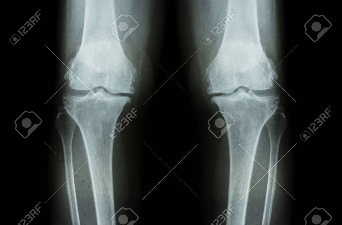 Osteoarthritis Knee ( OA Knee ). Film x-ray both knee ( front view ) show narrow joint space ( joint cartilage loss ) , osteophyte , subchondral sclerosis - 46036212
