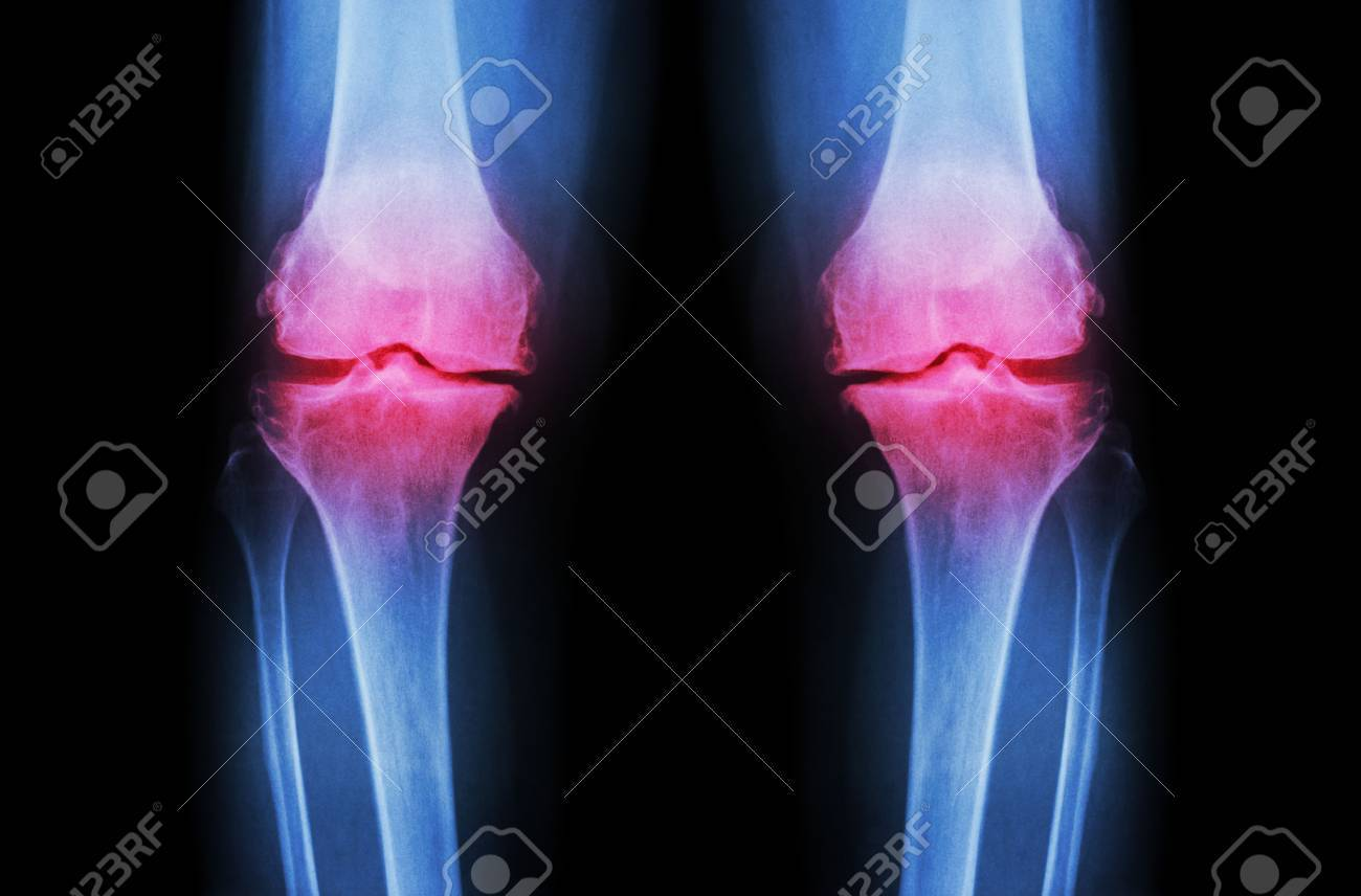 Osteoarthritis Knee ( OA Knee ). Film x-ray both knee ( front view ) show narrow joint space ( joint cartilage loss ) , osteophyte , subchondral sclerosis - 46036215