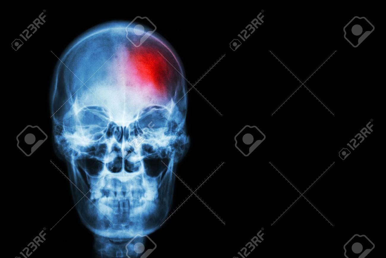 Accidente Cerebrovascular (accidente Cerebrovascular). Película ...