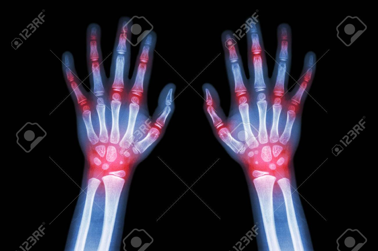 Rheumatoid arthritis , Gout arthritis ( Film x-ray both hands of child with multiple joint arthritis ) ( Medical , Science and Health care concept ) - 46736483