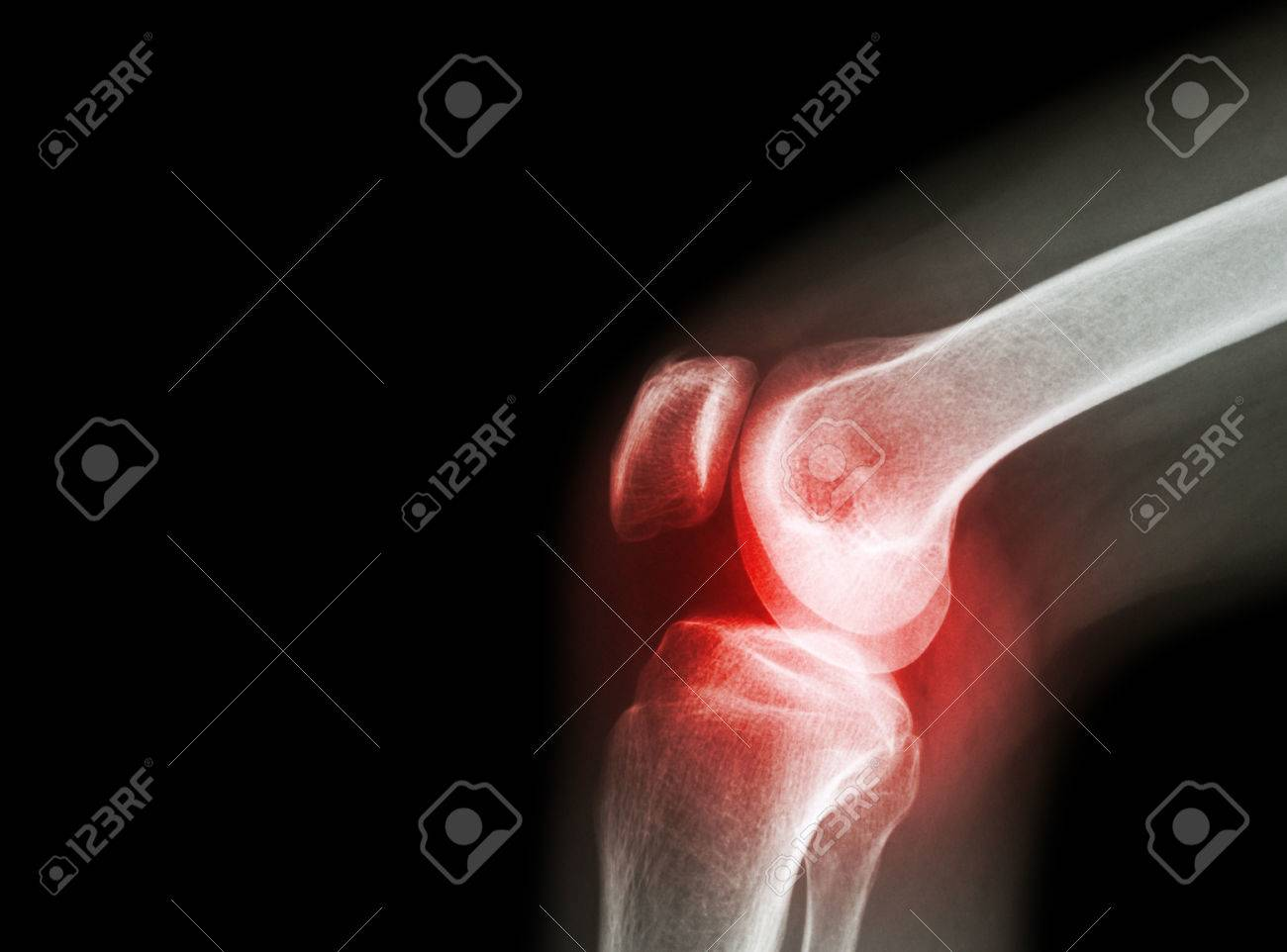 Film x-ray knee joint with arthritis ( Gout , Rheumatoid arthritis , Septic arthritis , Osteoarthritis knee ) and blank area at left side - 47040946