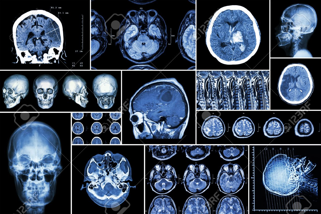 Set , Collection of brain disease ( Cerebral infarction , Hemorrhagic stroke , Brain tumor , Disc herniation with spinal cord compression ,etc)( CT scan , MRI , MRT )( Neurology and Nervous system ) - 47614929