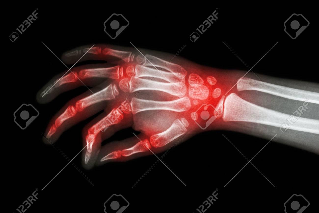 Rheumatoid arthritis , Gouty arthritis ( Film x-ray hand of child with arthritis at multiple joint ) - 49969190