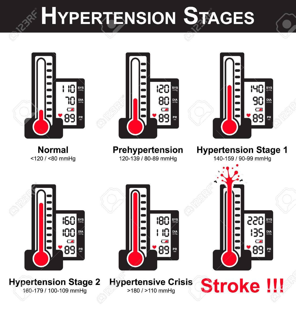 Etapa ii presión arterial alta