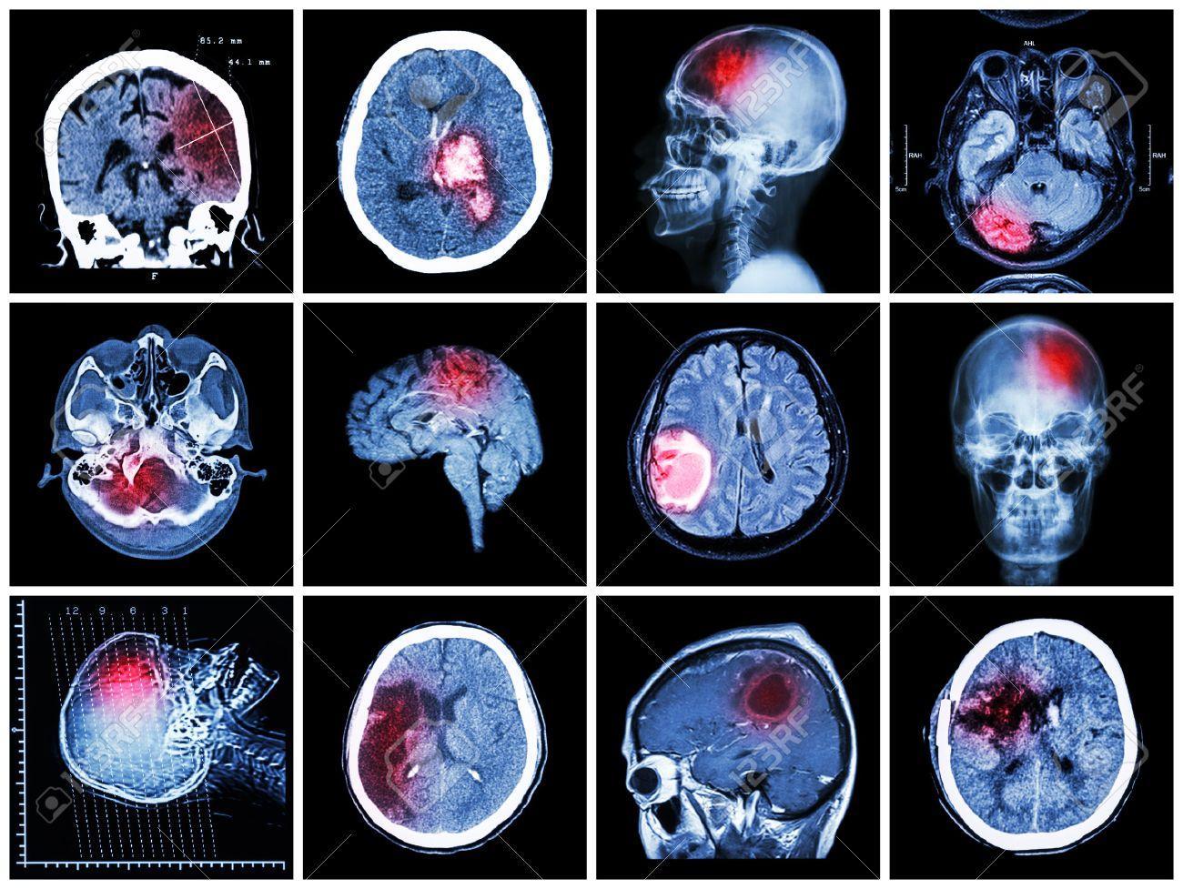 Collection of brain disease ( CT scan and MRI of brain : show cerebral infarct , intracerebral hemorrhage , brain tumor , basal ganglia hemorrhage ( status post craniotomy ) ) ( health care concept ) - 54908290