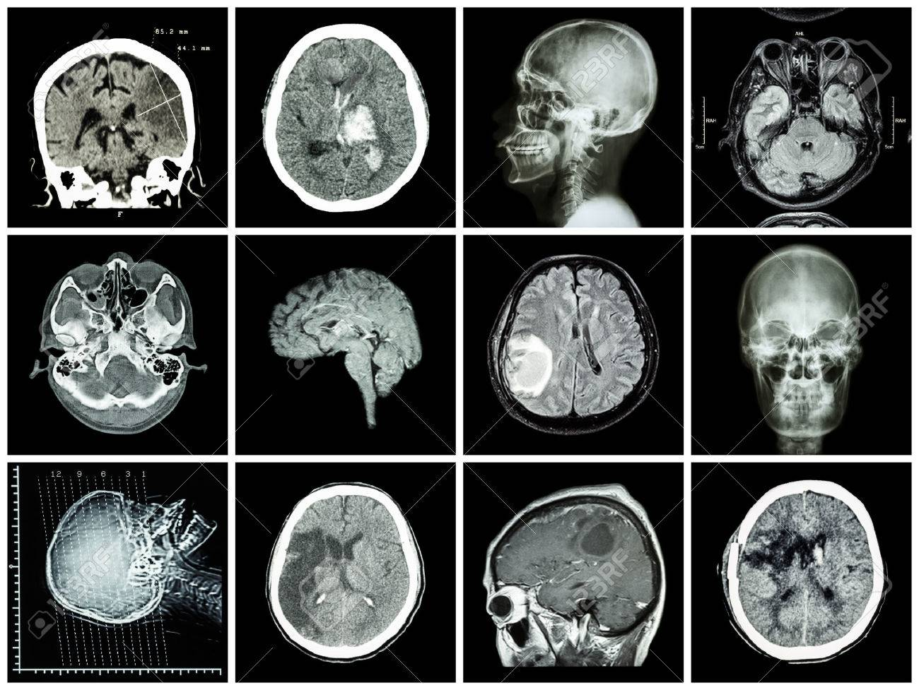 Collection of brain disease ( CT scan and MRI of brain : show cerebral infarct , intracerebral hemorrhage , brain tumor , basal ganglia hemorrhage ( status post craniotomy ) ) ( health care concept ) - 54908135