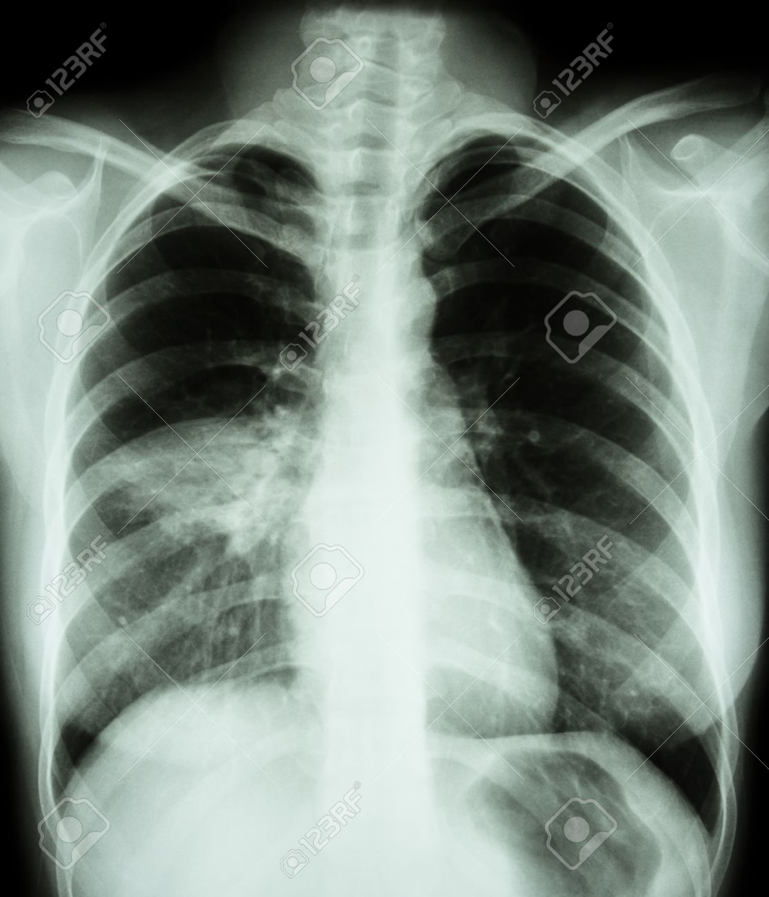 Pneumonia ( film chest x-ray show alveolar infiltrate at right middle lung ) ( image for pulmonary tuberculosis , Mers-CoV , SARS ) - 55067856