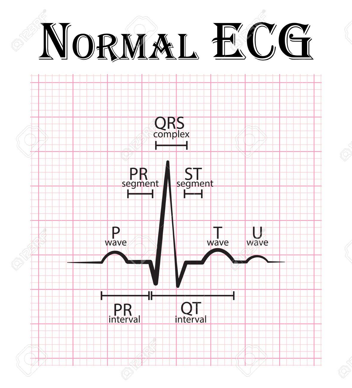 Normal ECG ( Electrocardiogram ) ( P wave , PR segment , PR interval , QRS complex , QT interval , ST segment , T wave , U wave ) - 55067903