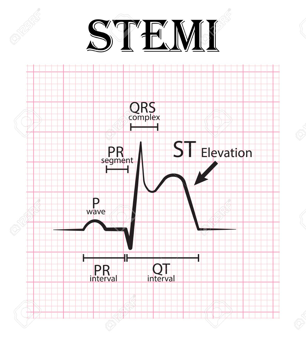 ECG of ST elevation myocardial infarction ( STEMI ) and detail of ECG ( P wave , PR segment , PR interval , QRS complex , QT interval , ST elevate , T wave ) Acute coronary syndrome , angina pectoris - 55067904