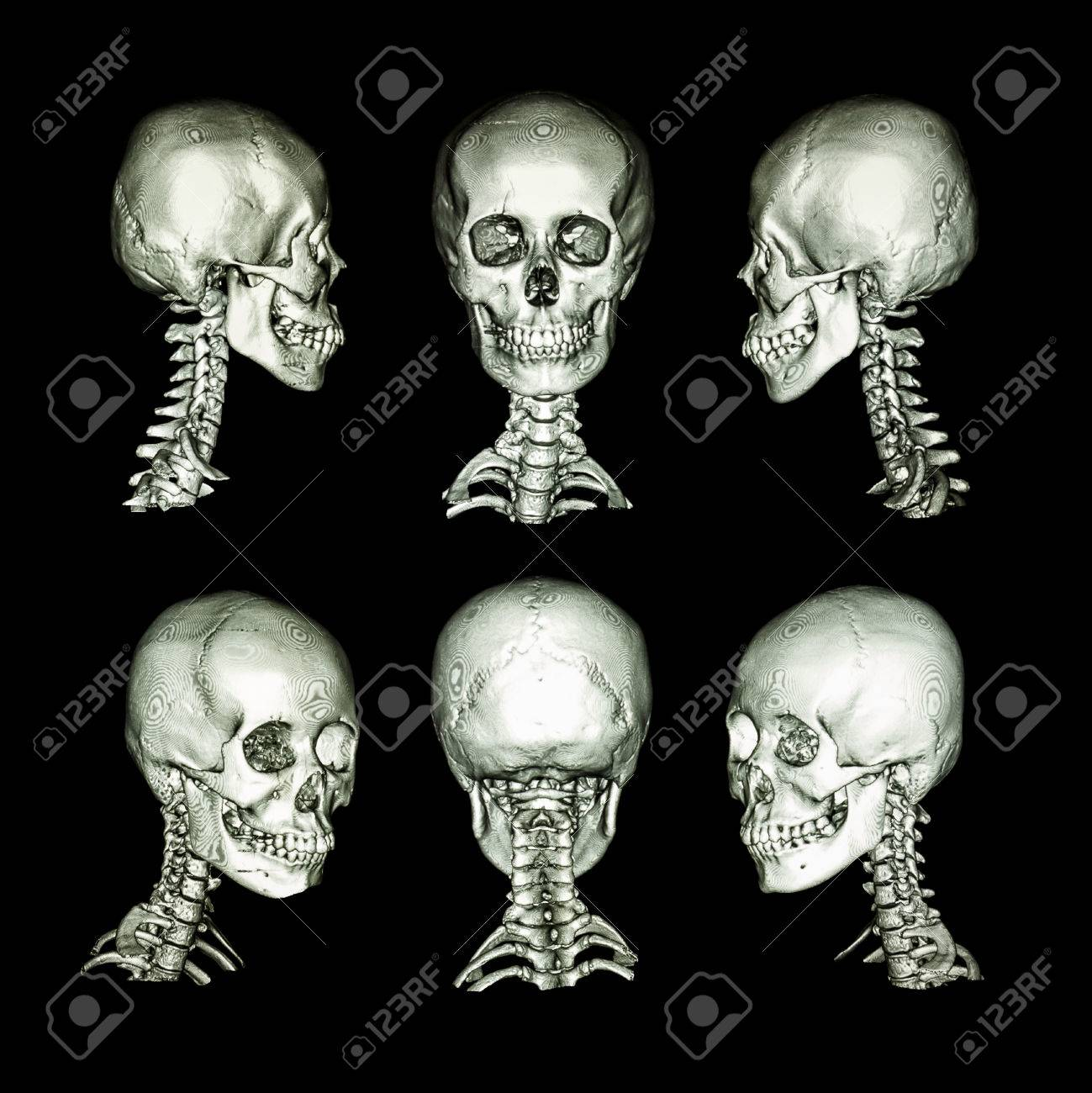 Ct Scan And 3d Image Normal Human Skull And Cervical Spine Stock