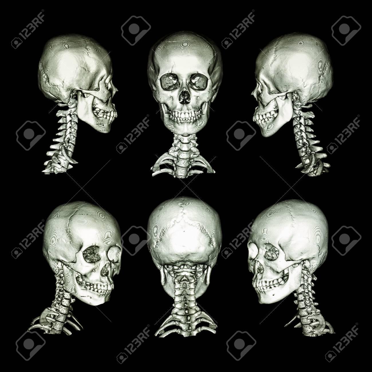 CT-Scan Und 3D-Bild. Normale Menschliche Schädel Und Halswirbelsäule ...