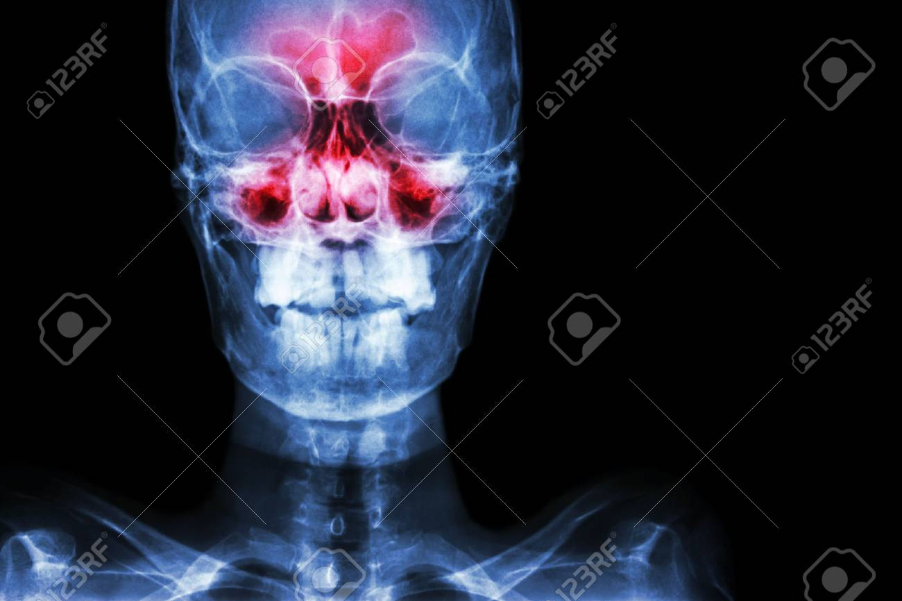 Sinusitis. film x-ray skull AP ( anterior - posterior ) show infection and inflammation at frontal sinus , ethmoid sinus , maxillary sinus and blank area at right side - 74913221